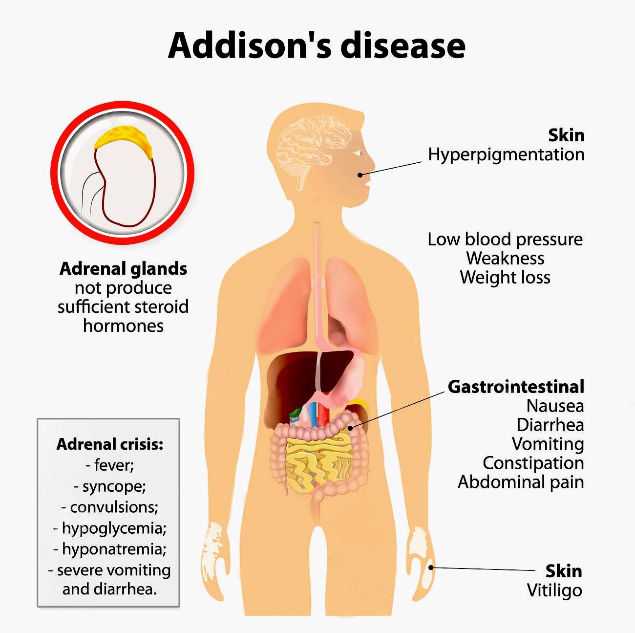 Adrenal Glands The Emergency Glands Online Science Notes