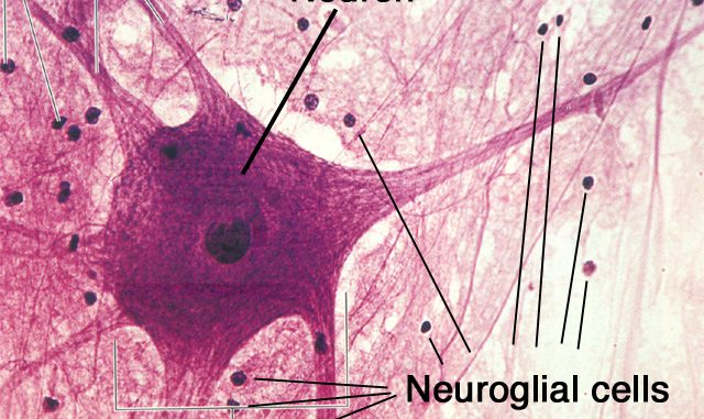 structure and types of neuron  the nervous tissue