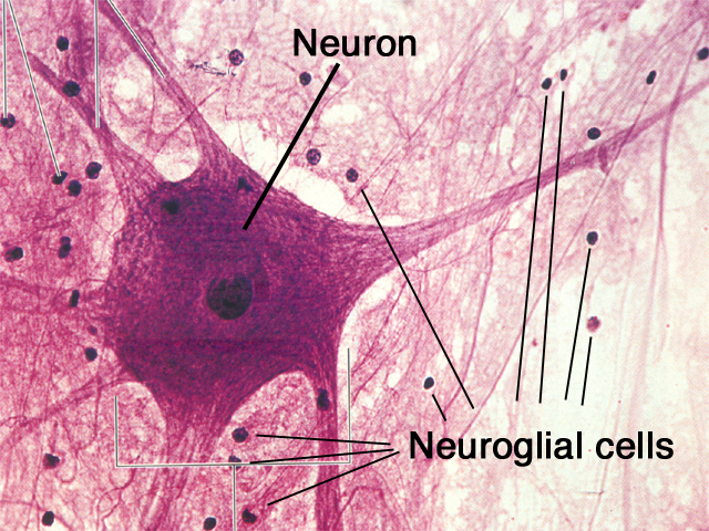 Structure and types of neuron (The nervous tissue ...