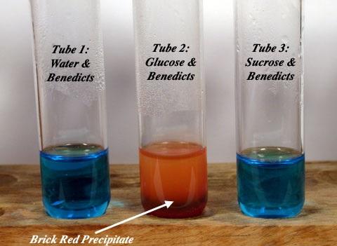 Benedict's Test: Principle, Requirements, Procedure and ...